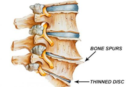 Spinal degenerative joints disease (Spondylosis)