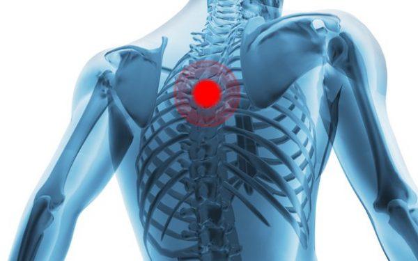 درمان دردهای قفسه سینه (توراسیک)
