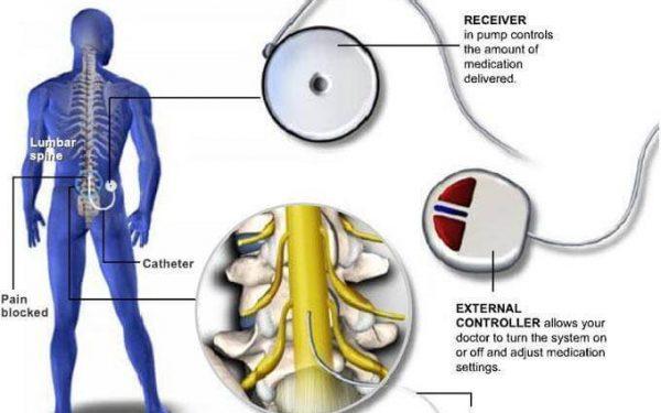 پمپ های داخل نخاعی