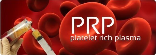 ما هو PRP