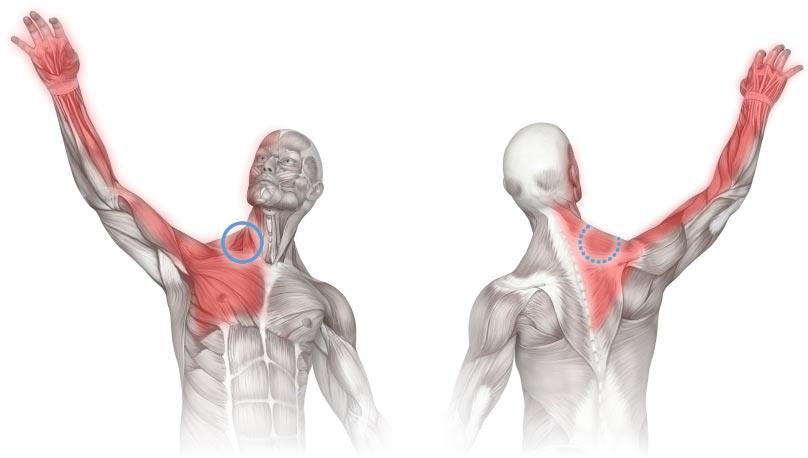 دردهای اندام فوقانی