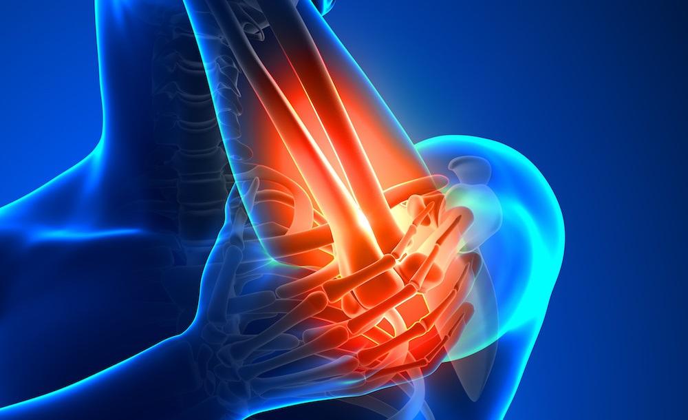 درمان دردهای اندام فوقانی