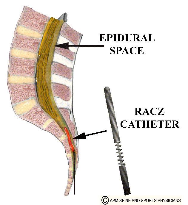 کودال نوروپلاستی با کاتتر راکس (باز کردن چسبندگی ها)