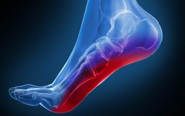 درد کف پا