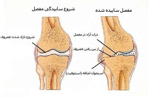 بیماری آرتروز و درمان های اینترونشنال (کم تهاجمی)