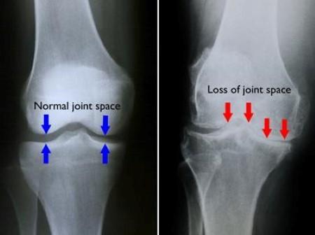 تغییر شکل مفصل زانو