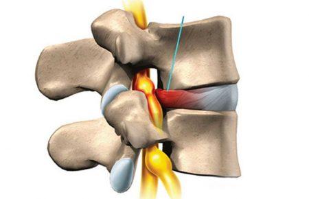 درمان اینترونشنال (جراحی بسته) دیسک و تنگی کانال