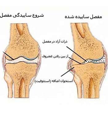 علت آرتروز یا ساییدگی مفصل