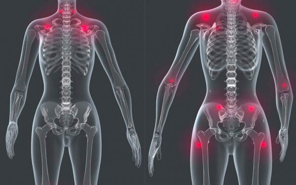 فیبرومیالژیا چیست ؟