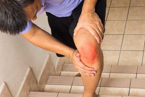 ورزش هایی برای بهبود آرتروز زانو بصورت تصویری