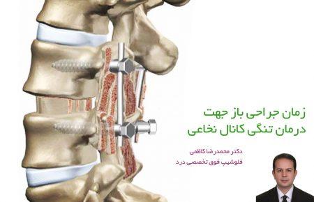 زمان جراحی باز جهت درمان تنگی کانال نخاعی