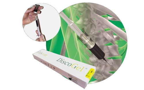 درمان دیسک کمر و گردن با استفاده از دیسکوژل