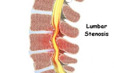 بهبود درد پا ناشی از تنگی کانال نخاع کمری