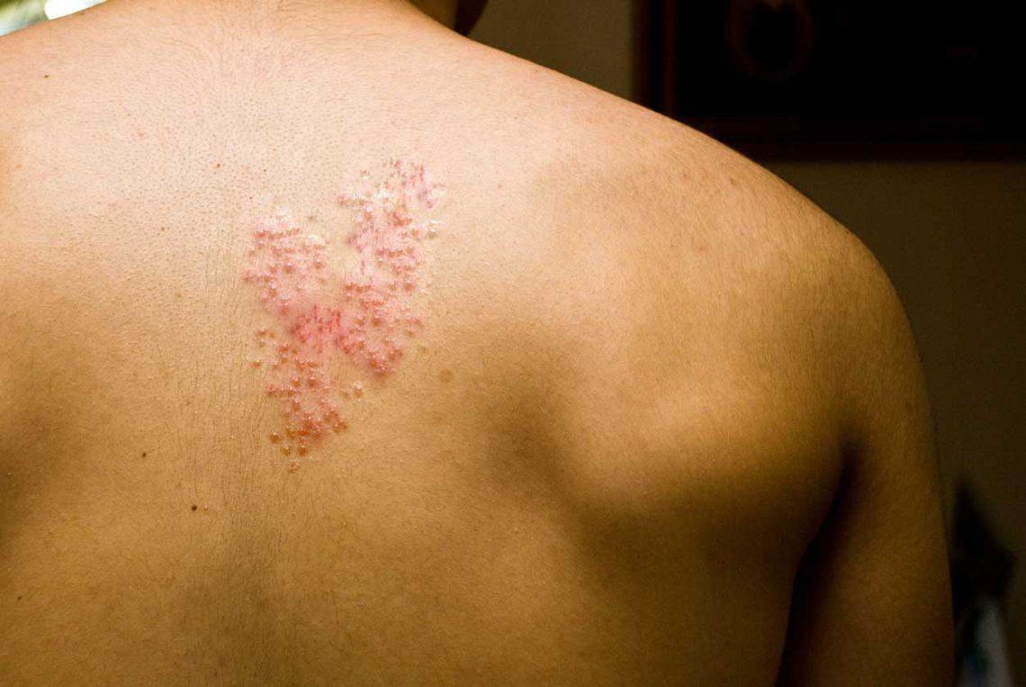 زونا و دردهای پس از زونا (نورالژی پست هرپتیک)