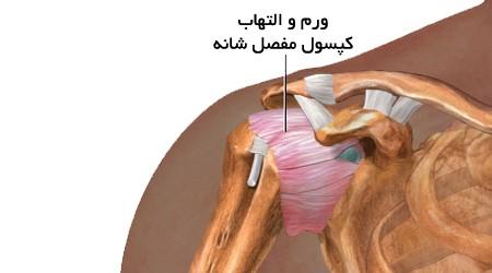 کپسول مفصل شانه