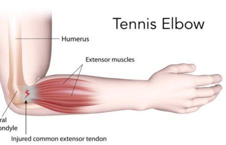 تنیس البو چیست و نحوه درمان آن چگونه است