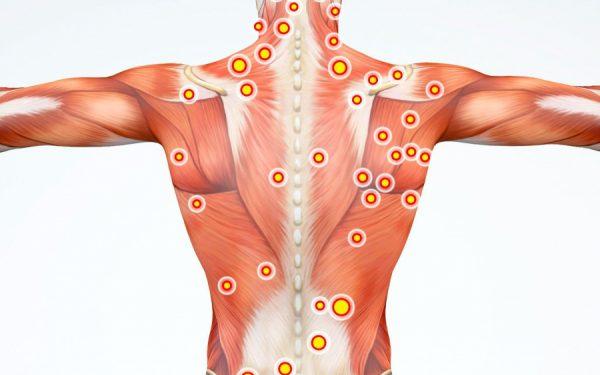 سندروم درد میوفاسیال (تریگر پوینت یا نقاط ماشهای دردناک)