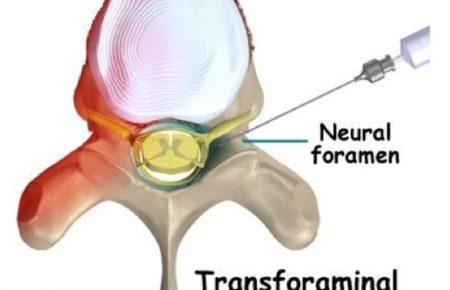 درمان کمردرد ناشی از بیرون زدگی دیسک کمری با تزریق ترانس فورامینال