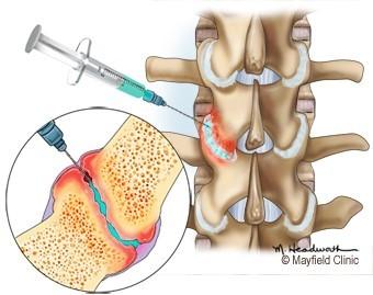 آرتروز مفصل فاست ستون فقرات و درمان آن