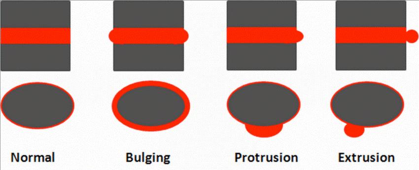 انواع فتق دیسک کمر