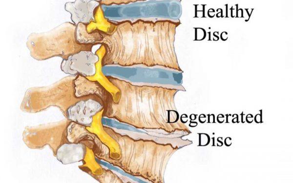فرسایش دیسک یا دژنراسیون