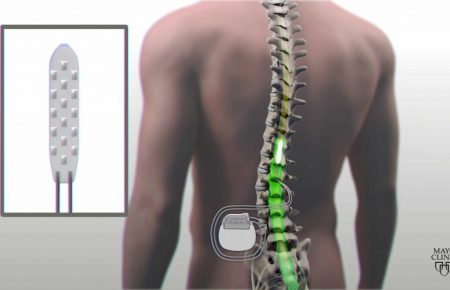 Spinal Cord Stimulator محفزات العمود الفقری