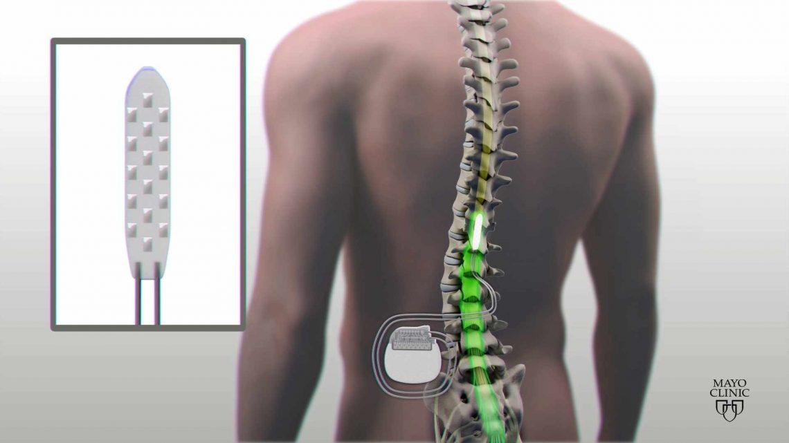 Spinal Cord Stimulator محفزات العمود الفقری