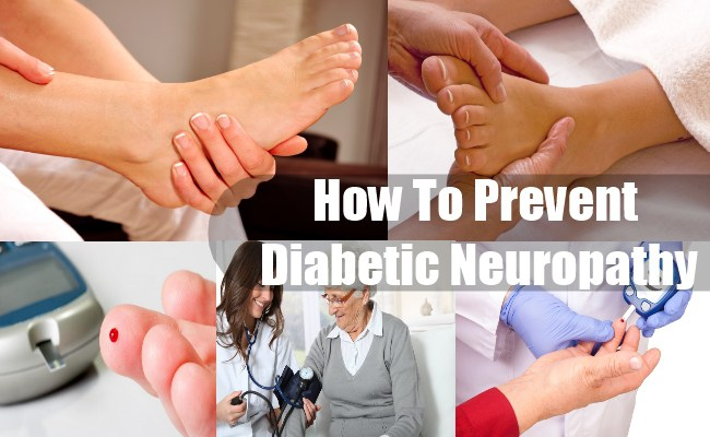تشخيص اعتلال الأعصاب السكري