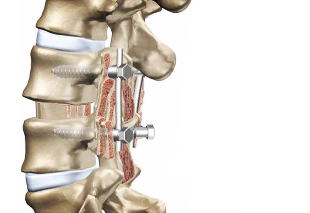 حان وقت الجراحة المفتوحة لعلاج تضيق القناة الشوكية