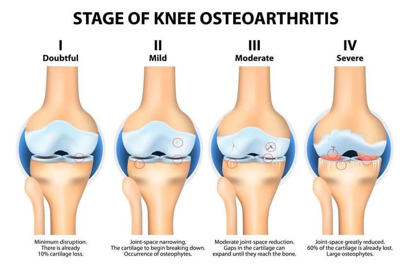 تشخيص التهاب مفاصل الركبة