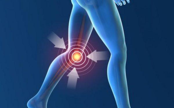 ما هو التهاب مفاصل الركبة وما هو العلاج