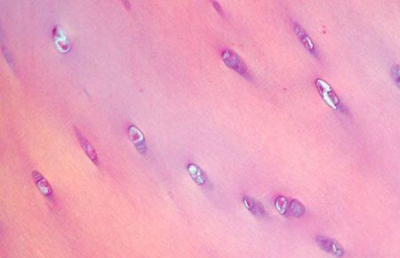 الأنسجة الرخوة للجهاز العضلي الهيكلي