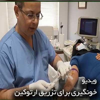 خونگیری برای تزریق ارتوکین