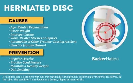عوامل خطر فتق دیسک