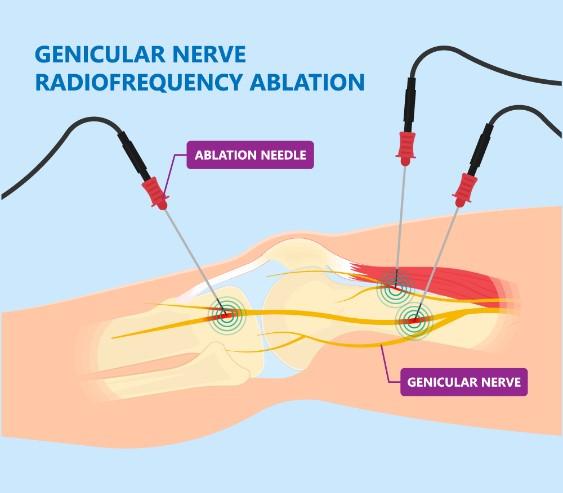 رادیوفرکوئنسی عصب های زانوئی درگیر